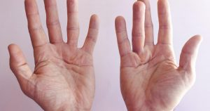 Dupuytren's Contracture Treatment